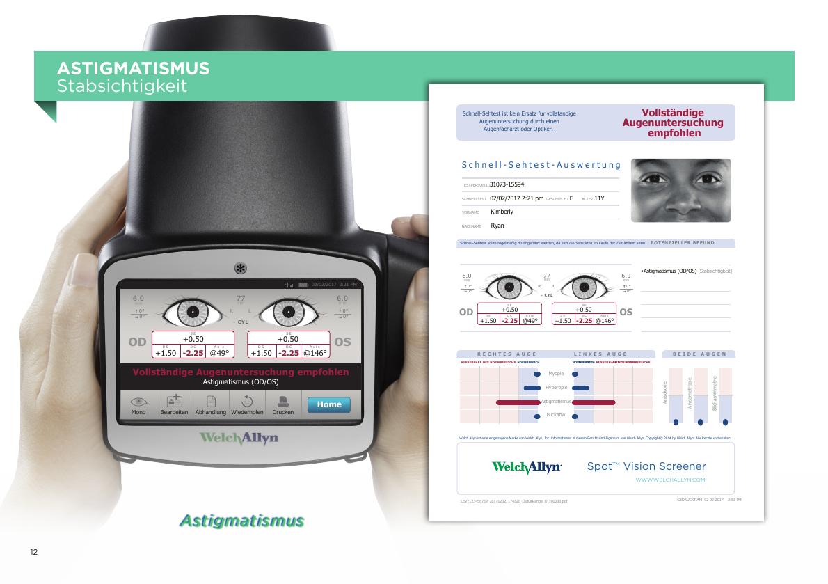 Spot™ Vision Screener Ergebnis Stabsichtigkeit