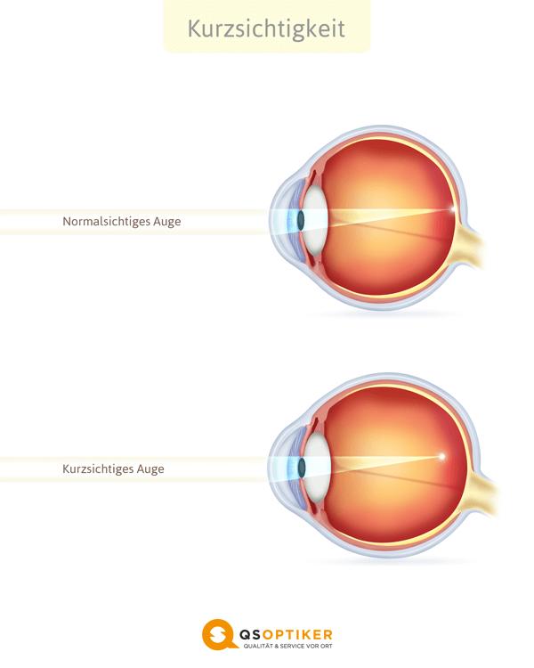 Spot-Vision-Screener Myopie kurzsichtigkeit auge